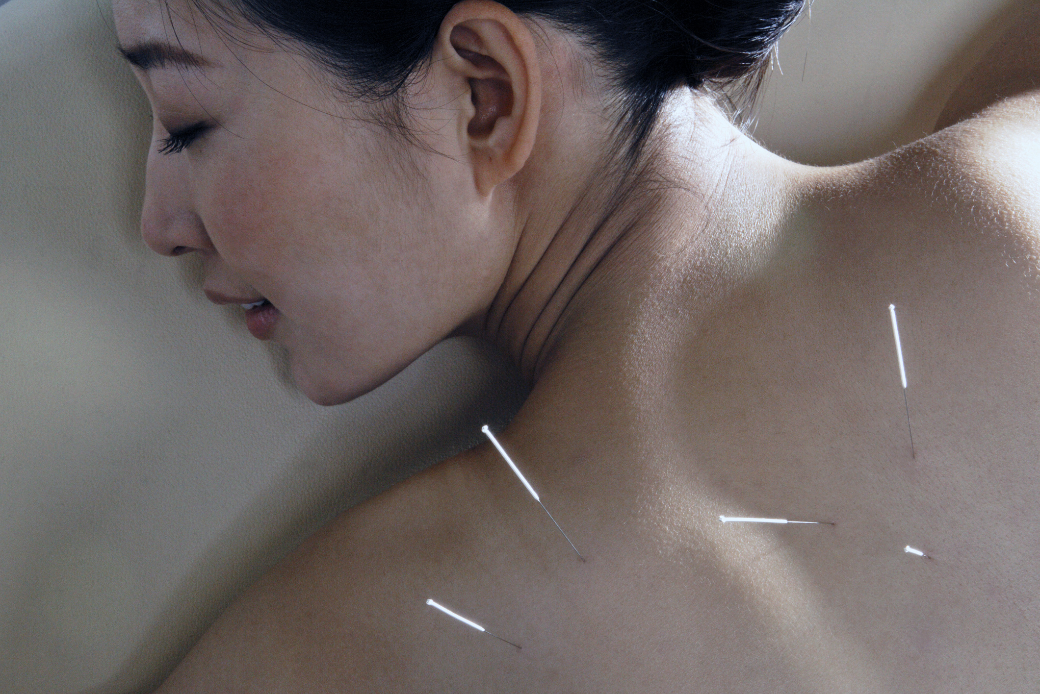 Acupuncture Practice – Over 420 patients treated – Seaside, OR